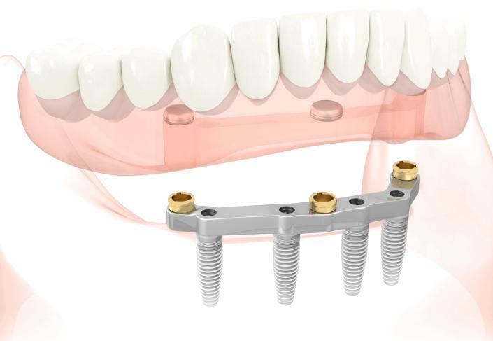 implant support denture cork