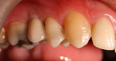 implant treatment cork